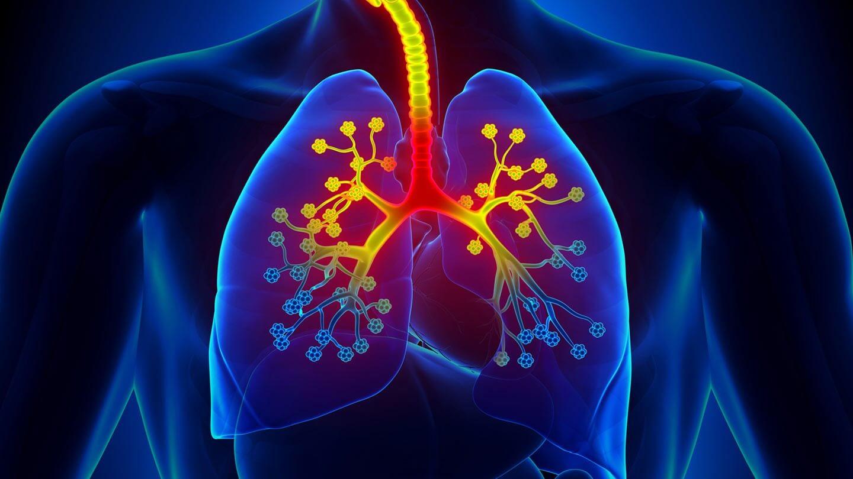 Astma. Leczenie i zapobieganie. Dieta, otoczenie i styl życia astmatyka