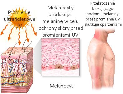 Oparzenia słoneczne. Leczenie i profilaktyka. Preparaty miejscowe, optymalna higiena i dieta przyspieszająca gojenie