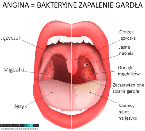 Angina. Bakteryjne zapalenie gardła. Leczenie