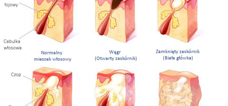 Trądzik pospolity i różowaty. Wągry, pryszcze i krosty. Przyczyny, objawy i leczenie, w tym właściwa higiena, kosmetyka i dieta na trądzik KOMPENDIUM