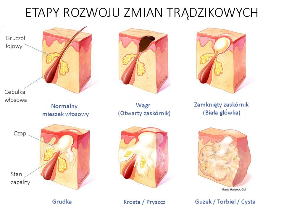 Stadia rozwoju trądziku, wągrów i pryszczy