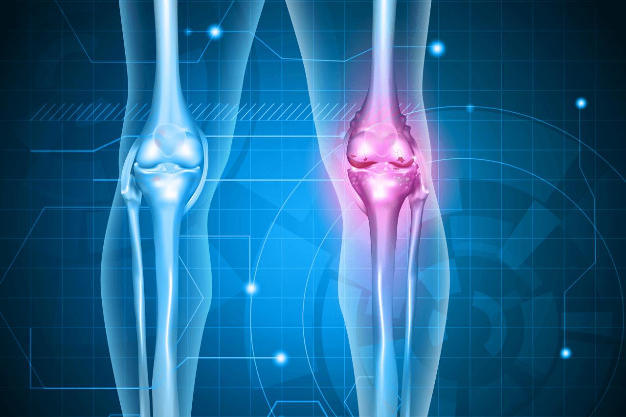 Ból kolana. Staw kolanowy. Przyczyny dolegliwości, zapobieganie i leczenie, w tym dieta, preparaty miejscowe i ćwiczenia wzmacniające
