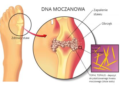 Dna moczanowa. Podagra. Artretyzm. Przyczyny, objawy, zapobieganie i leczenie, w tym dieta, zioła i preparaty miejscowe