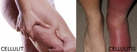 Cellulit vs cellulitis