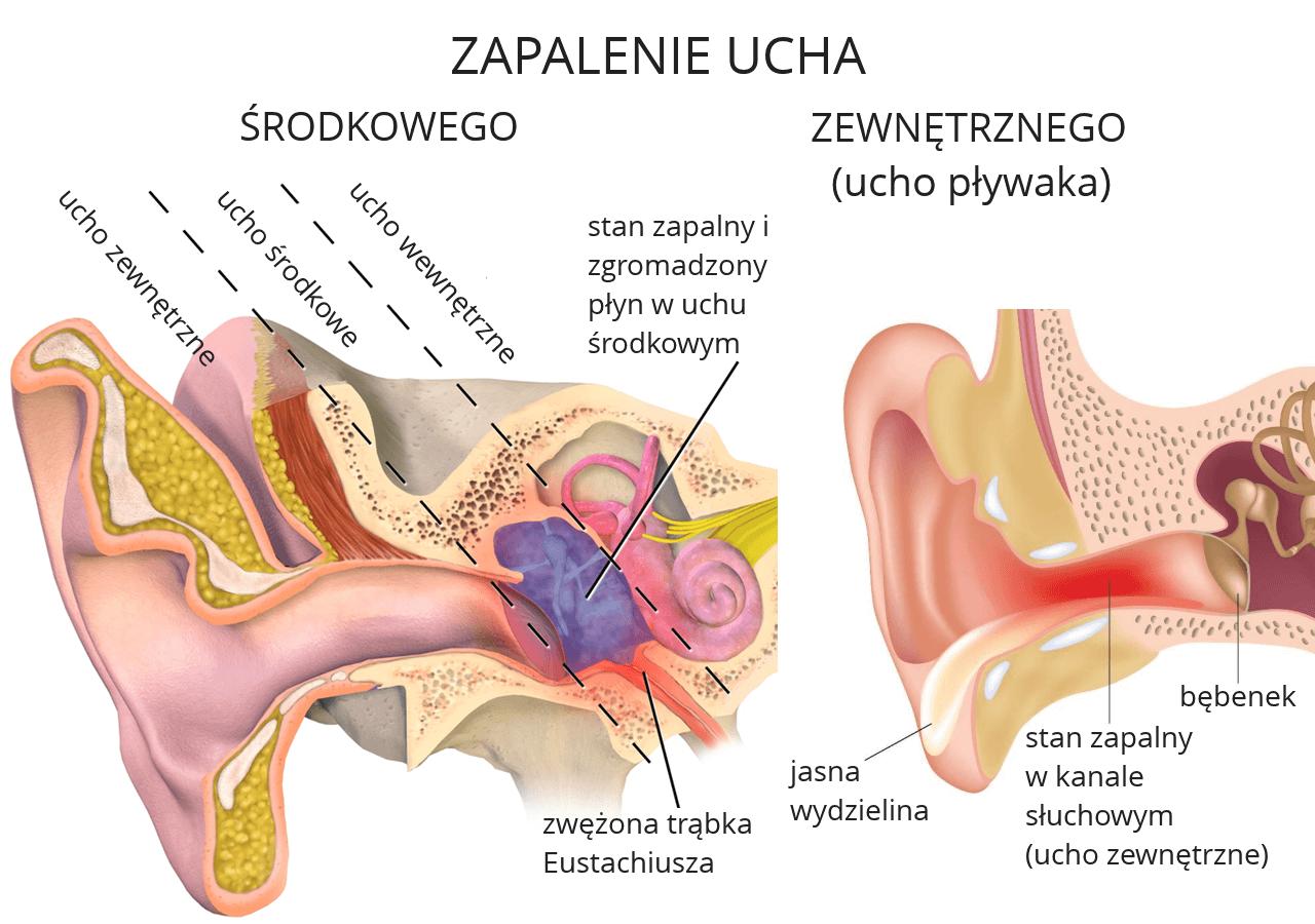 Zapalenie ucha zewnętrznego i środkowego