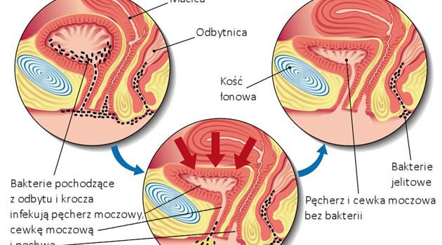Zapalenie pęcherza moczowego. Objawy, domowe sposoby leczenia i profilaktyki. Właściwa dieta, higiena i bezpieczne życie seksualne