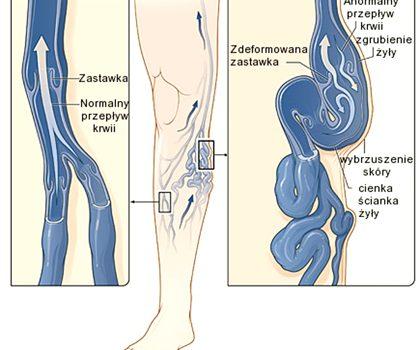 Żylaki kończyn dolnych. Przyczyny, objawy, leczenie, usuwanie i zapobieganie