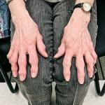 choroba-zwyrodnieniowa-stawow