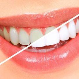Na czym polega piaskowanie zębów?