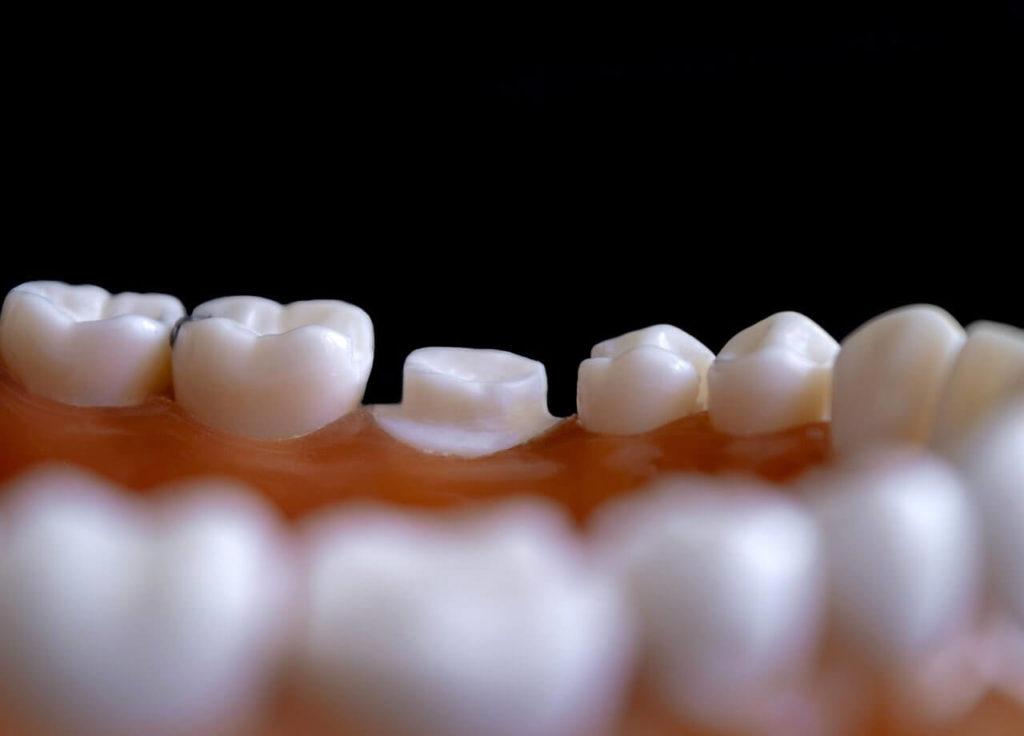 Klinika stomatologiczna – implanty zębowe i protezy zębowe