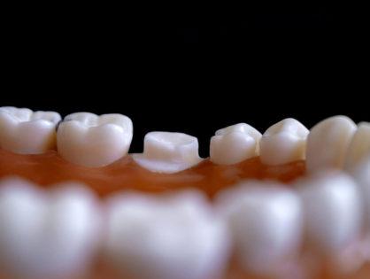 Klinika stomatologiczna - implanty zębowe i protezy zębowe