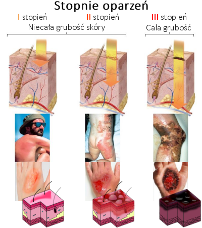 Stopnie oparzeń skóry