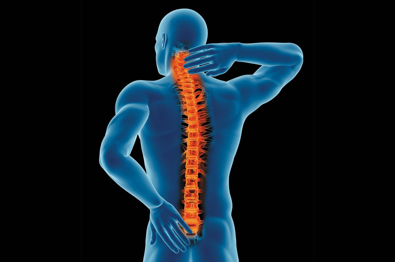 Bóle kręgosłupa. Ból pleców i krzyża. Przyczyny, objawy, leczenie i zapobieganie