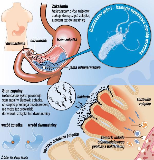 Wrzody żołądka i dwunastnicy