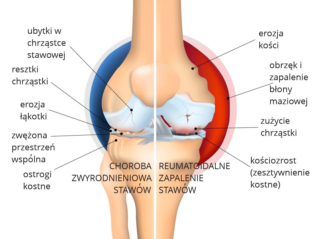 Zapalenie stawów - zwyrodnieniowe i reumatoidalne