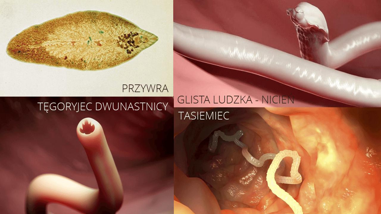 Jak oczyścić organizm z pasożytów? Odrobaczanie