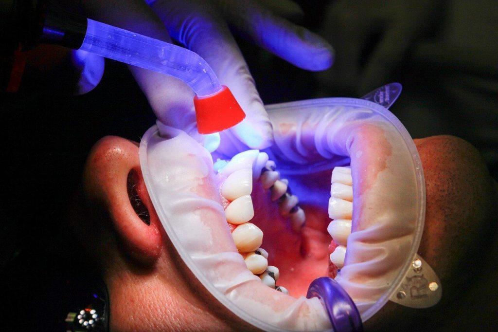 Podstawowa wiedza o implantach